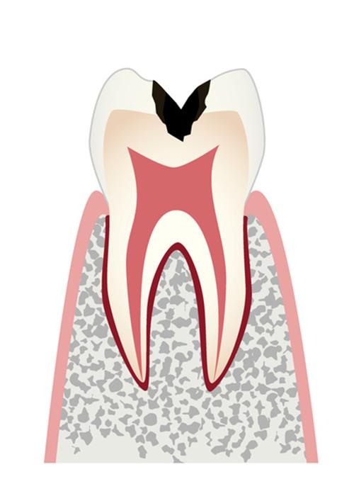 歯の内部まで進行した虫歯